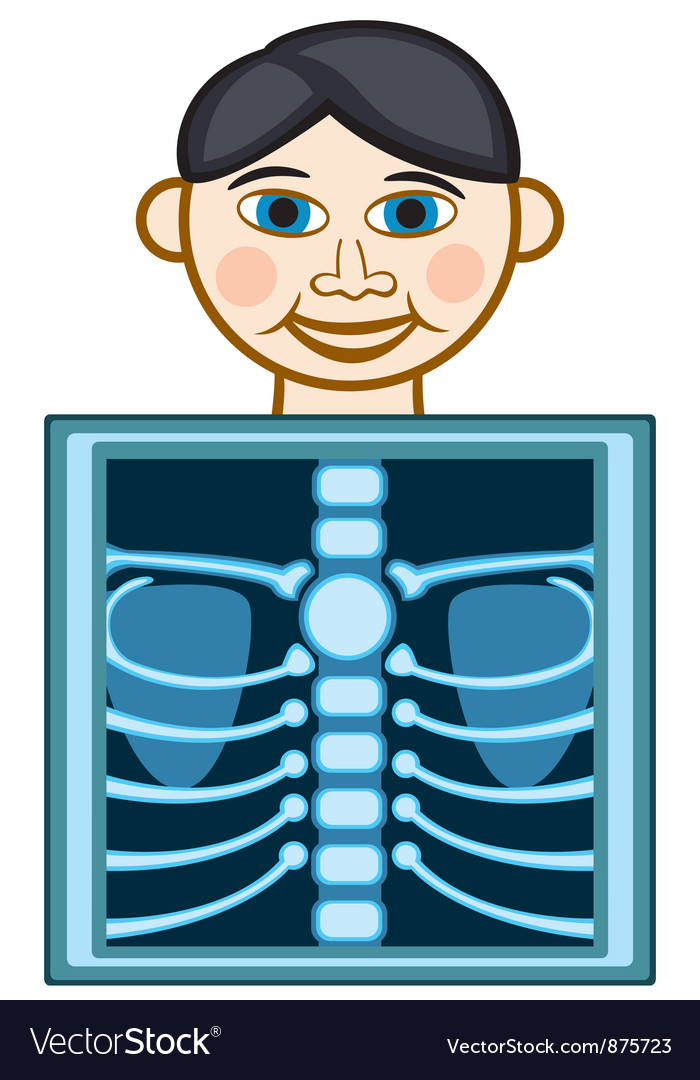 X ray vector