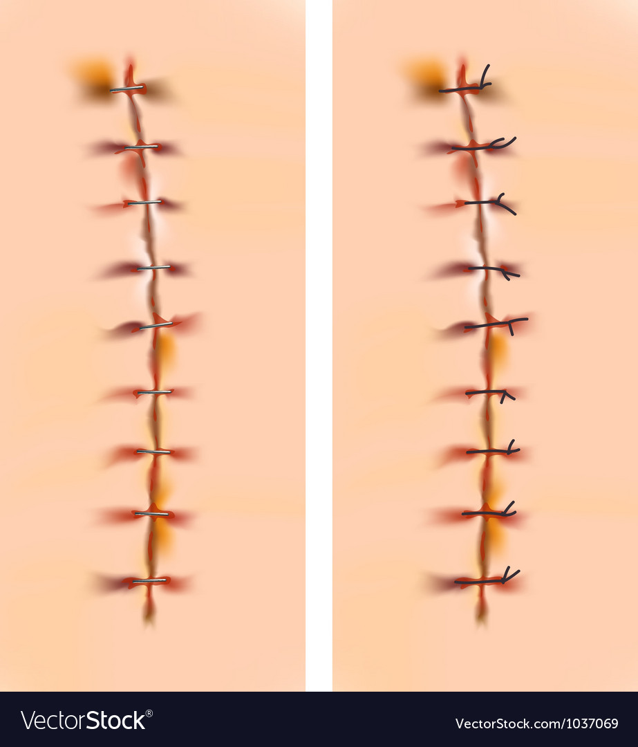 Scars with staples and sutures vector