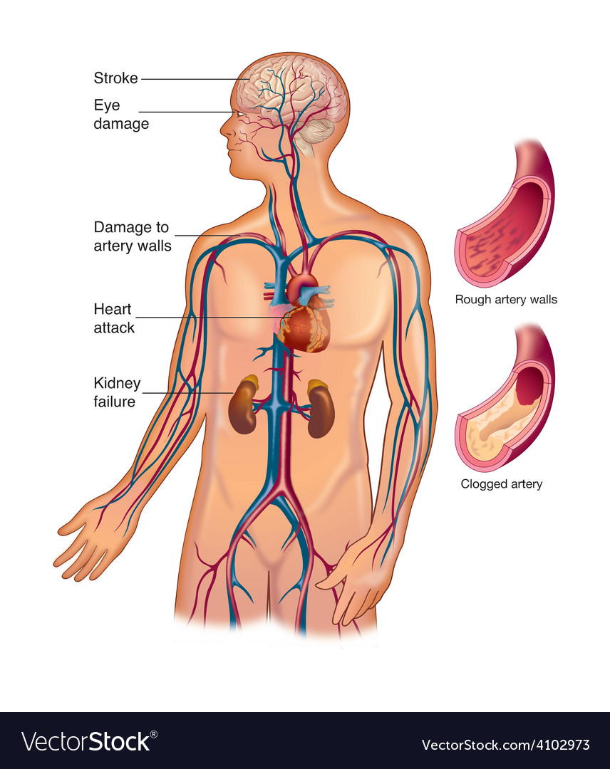 High blood pressure effects vector