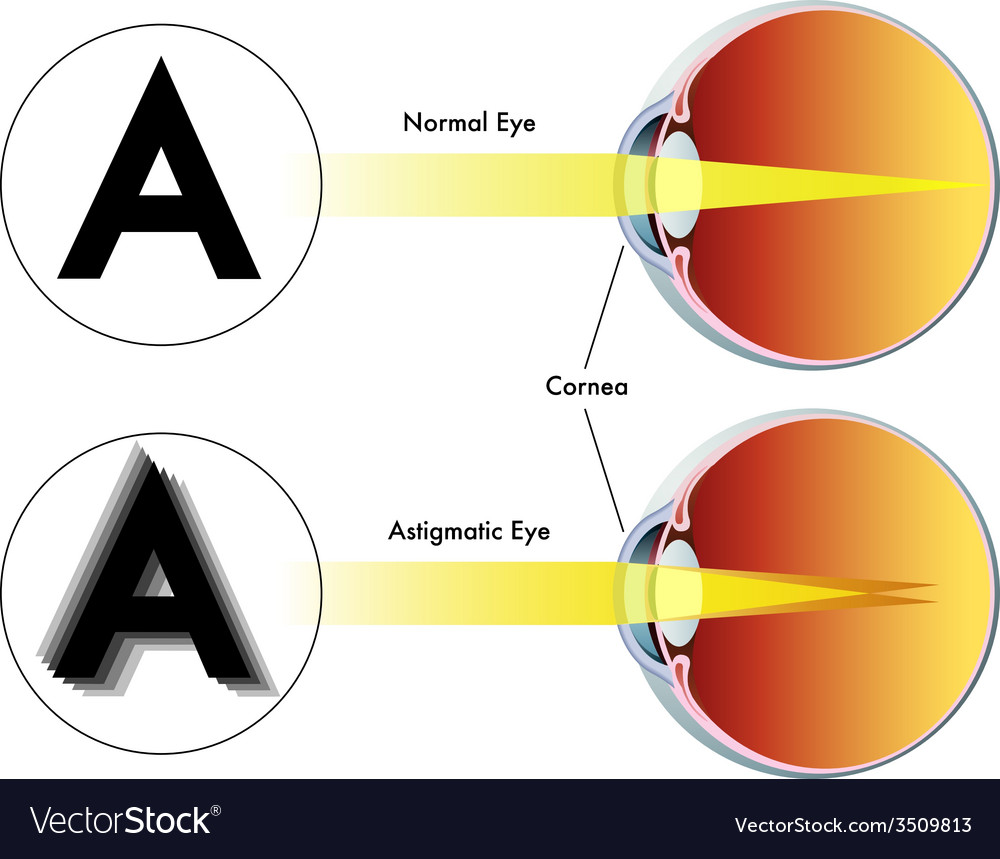 Astigmatism vector