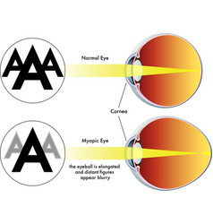 Myopia vector