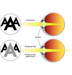 Presbyopia vector