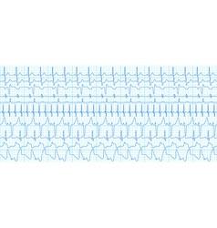 Cardiograms vector