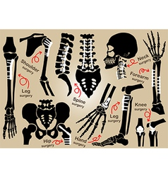 Collection of orthopedic surgery vector