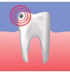 Hole in the tooth vector