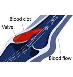 Venous thrombosis vector