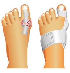Big toe injury vector