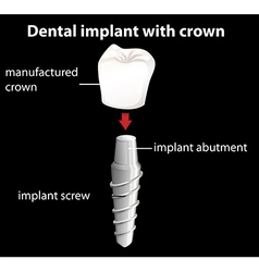 A dental implant with crown vector