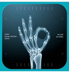 X-ray of both human hand - ok symbol vector