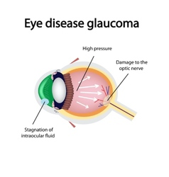 Glaucomatous eye violations causing glaucoma vector