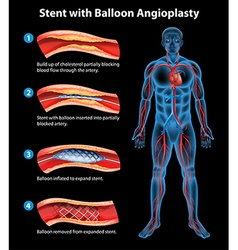 Stent angioplasty procedure vector