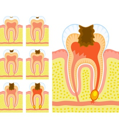 Internal structure of tooth vector