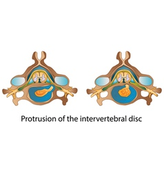 Protrusion of the intervertebral disc vector