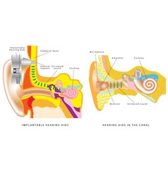 Ear hearing aid vector
