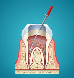 Dental injection in cutaway vector