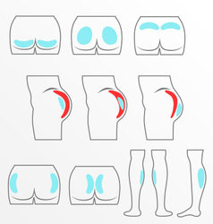 Location buttocks and calf implants vector