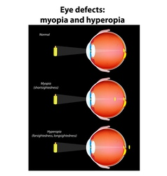 Eye defects vector