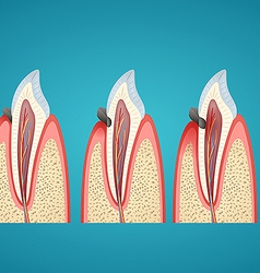 Stages progress caries on human canine vector