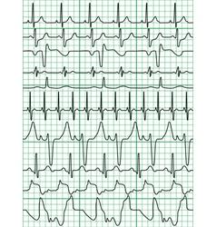 Cardiogram vector