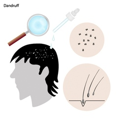 Dandruff with the disease prevention and treatment vector