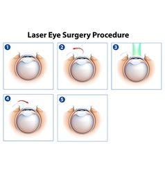 Laser eye surgery procedure vector