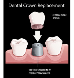 A dental crown replacement vector