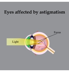Impaired vision with astigmatism as astigmatism vector