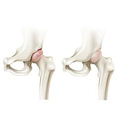 Hip arthritis vector