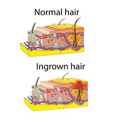 Ingrown and normal hair vector