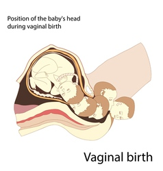 Vaginal birth vector
