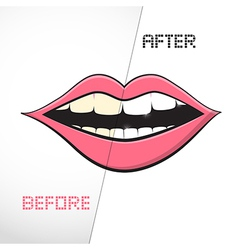 Cleaning teeth before and after vector