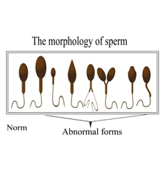 The morphology of the sperm normal and abnormal vector