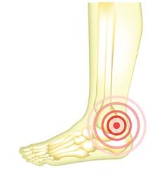 Leg pain vector