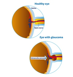 Of an eyeball in a healthy state and in glaucoma vector