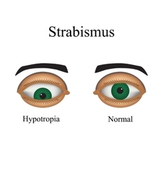 Diseases of the eye - strabismus a variation of vector