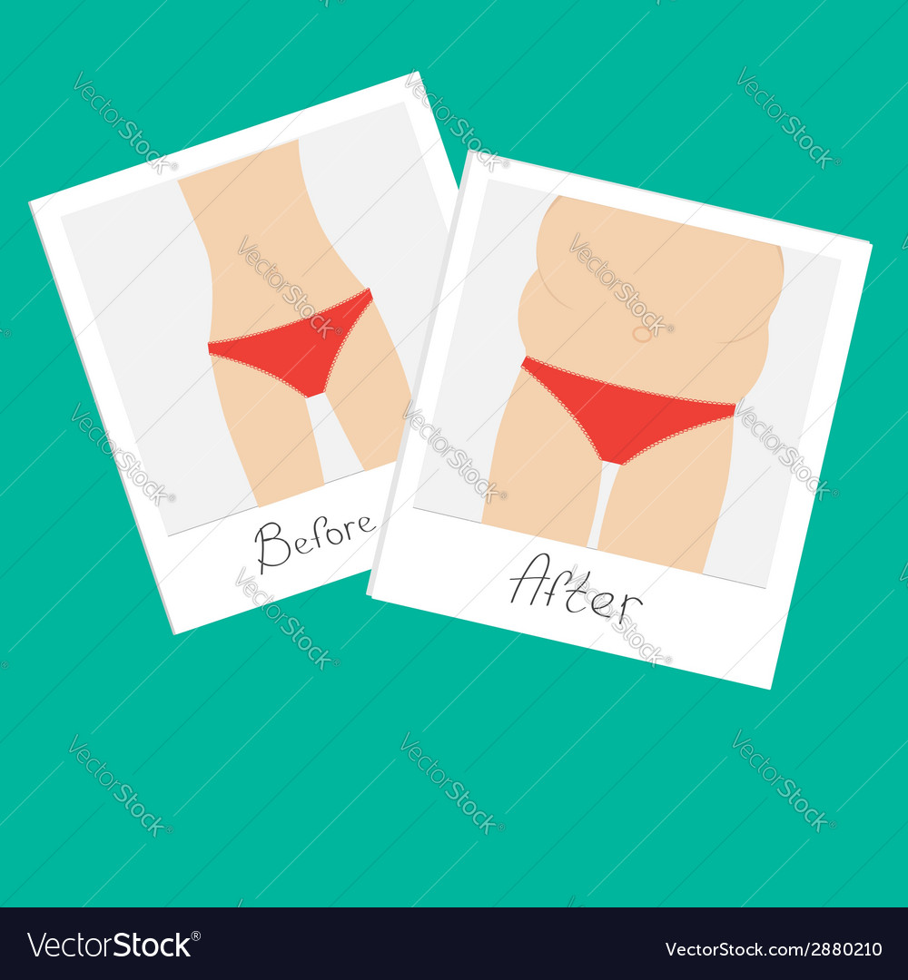 From skinny fat woman before after instant photo vector | Price: 1 Credit (USD $1)