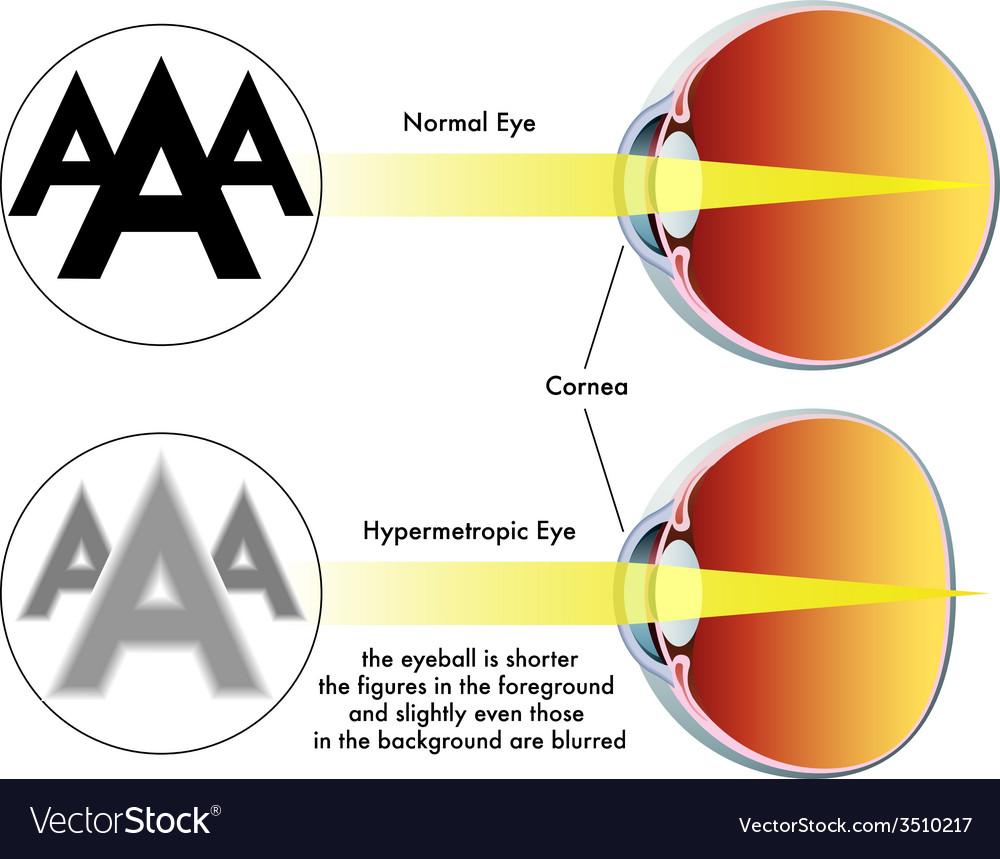 Hypermetropia vector | Price: 1 Credit (USD $1)
