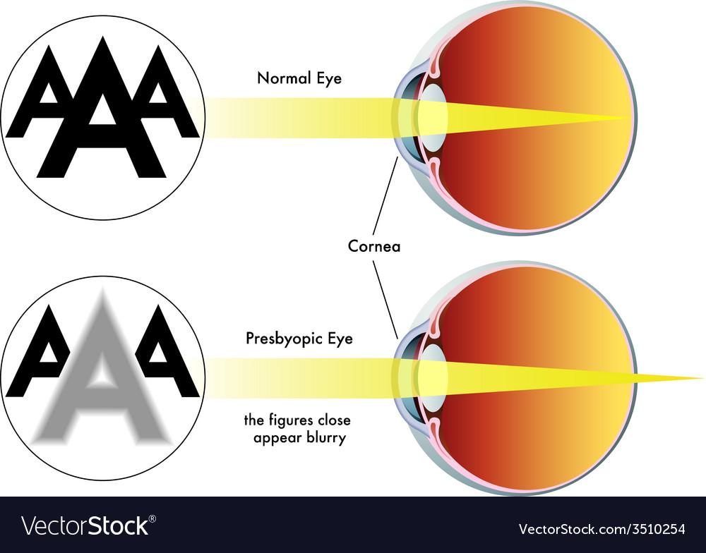Presbyopia vector | Price: 1 Credit (USD $1)