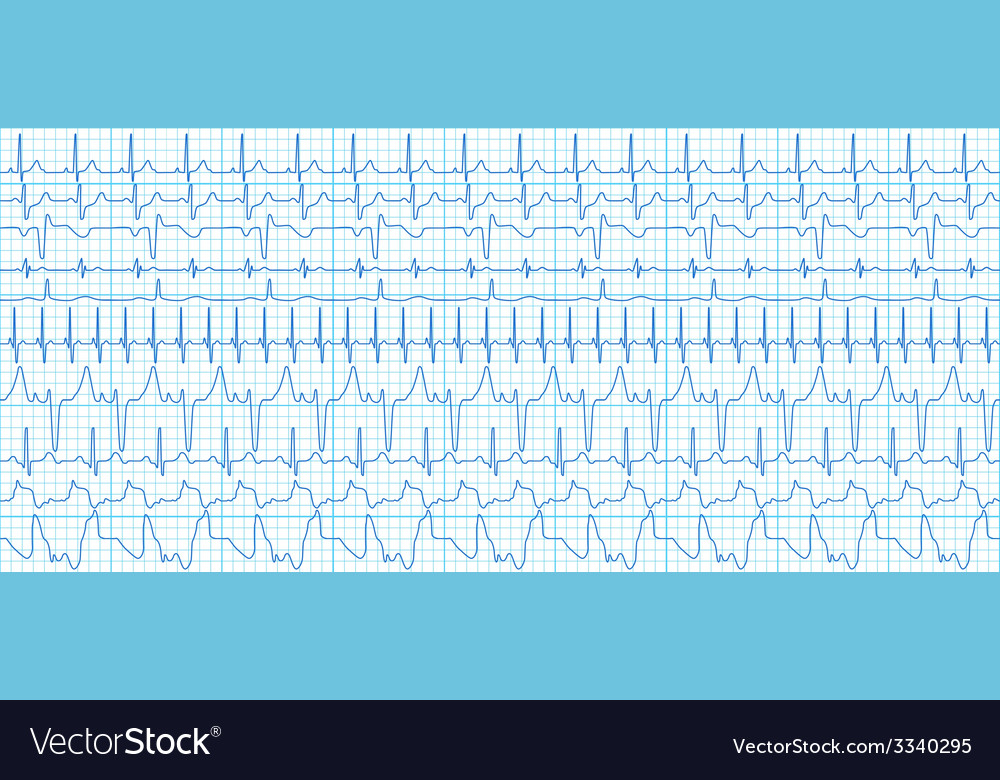 Cardiograms vector | Price: 1 Credit (USD $1)