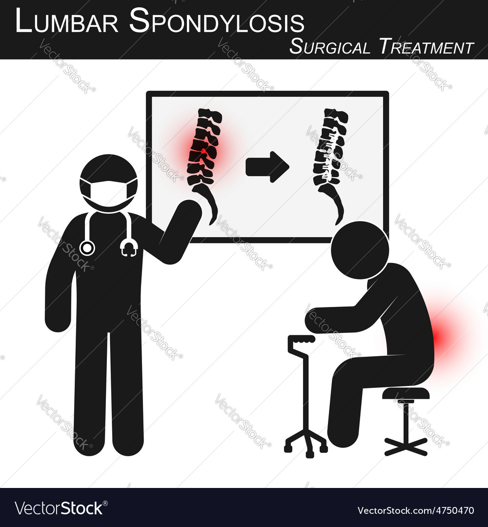 Lumbar spondylosis and surgical treatment vector | Price: 1 Credit (USD $1)