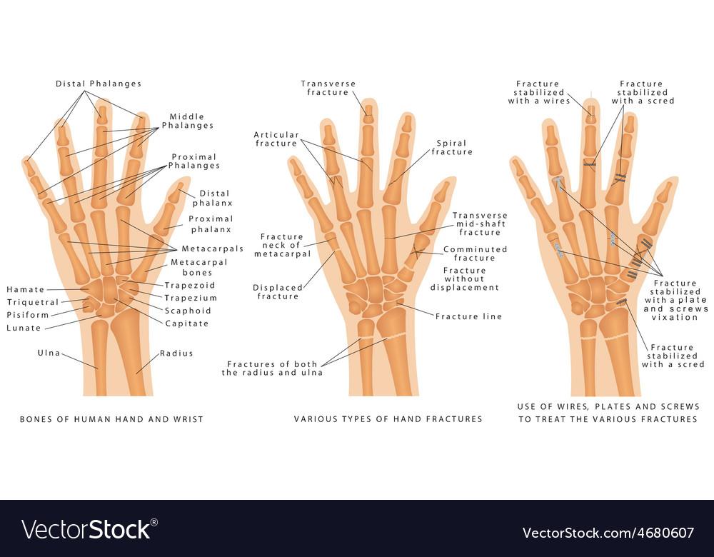 Hand fractures vector | Price: 1 Credit (USD $1)