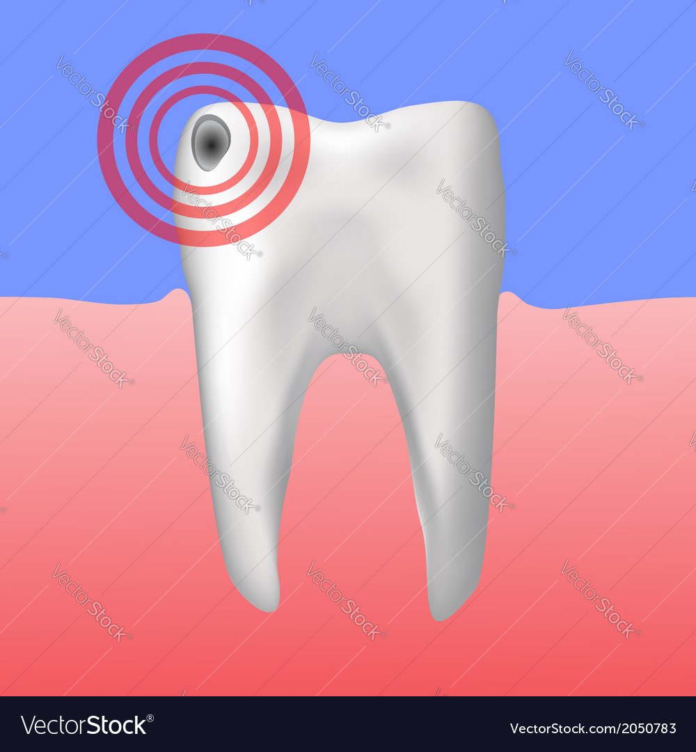 Hole in the tooth vector | Price: 1 Credit (USD $1)