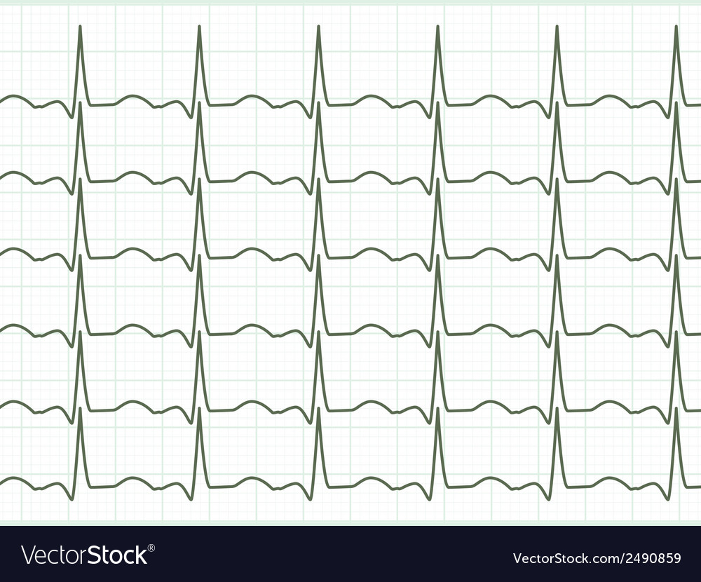 Heart cardiogram eps 8 vector | Price: 1 Credit (USD $1)