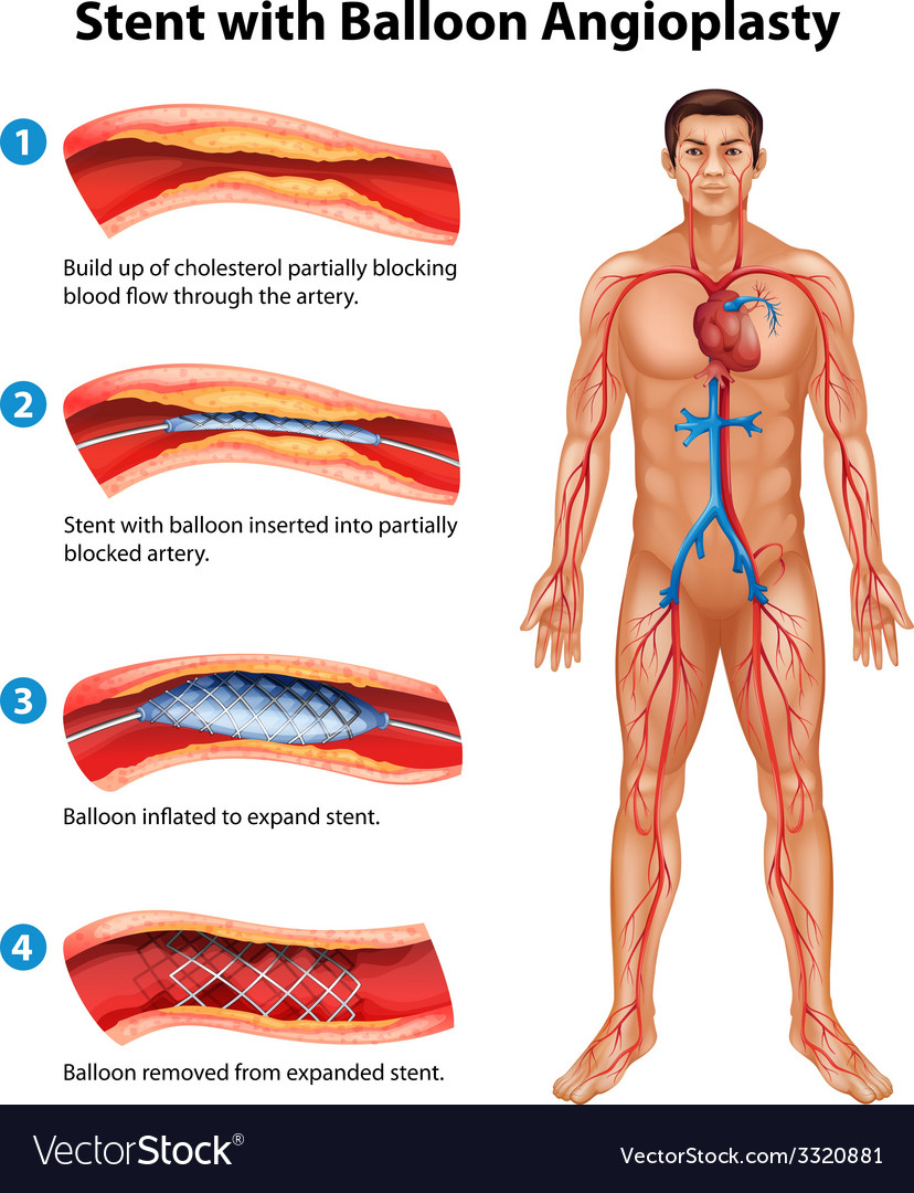 Stent angioplasty procedure vector | Price: 3 Credit (USD $3)