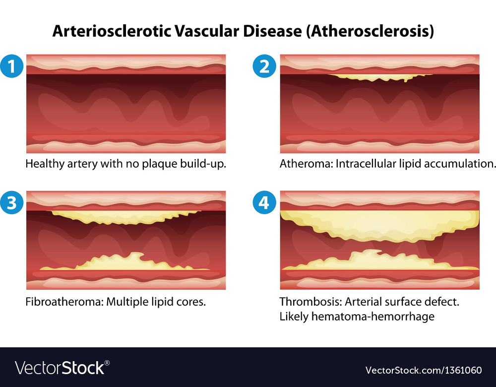 Ateriosclerosis vector | Price: 1 Credit (USD $1)