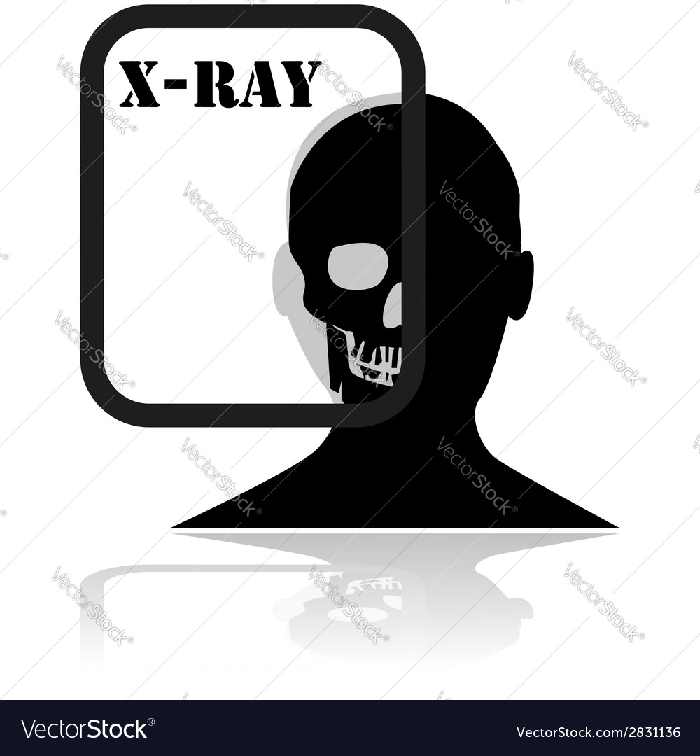 X-ray plate vector | Price: 1 Credit (USD $1)