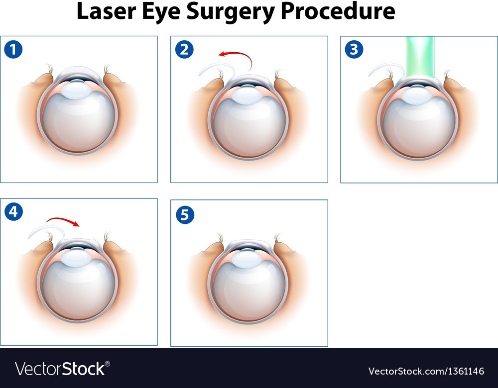 Laser eye surgery procedure vector | Price: 1 Credit (USD $1)
