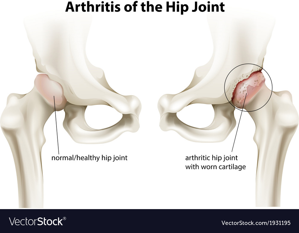 Arthritis of the hip joint vector | Price: 1 Credit (USD $1)