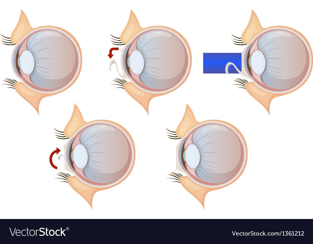 Laser eye correction vector | Price: 1 Credit (USD $1)