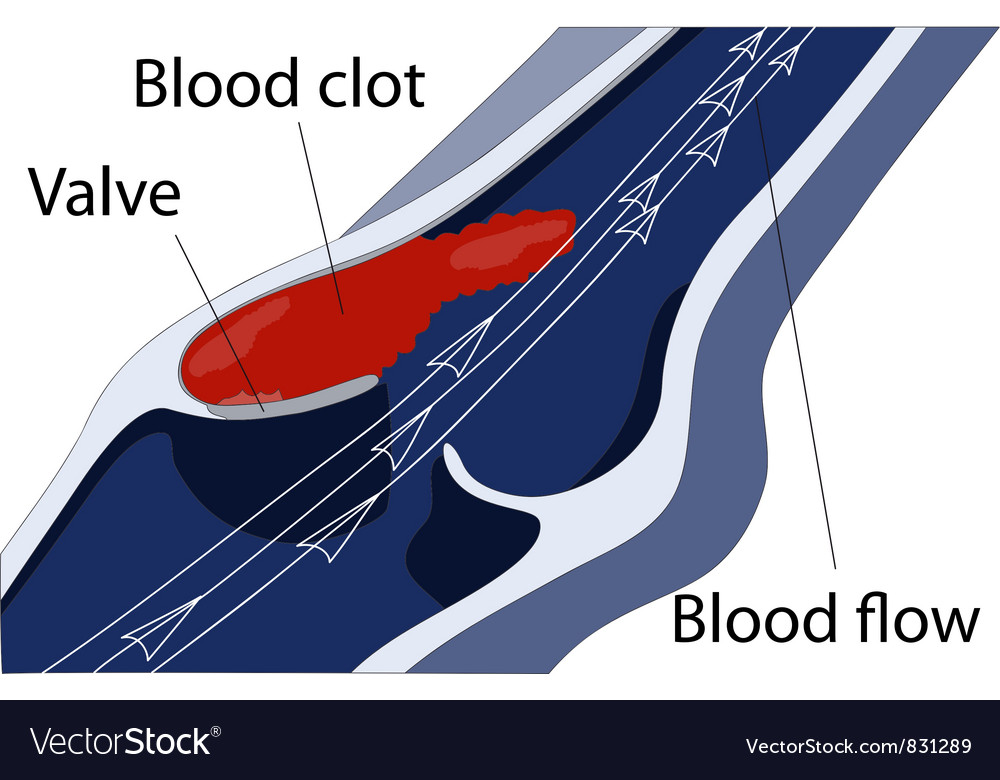 Venous thrombosis vector | Price: 1 Credit (USD $1)
